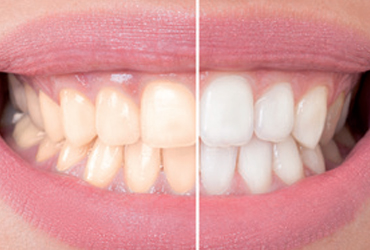 - FREE Teeth Whitening