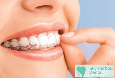- $500 Off Full Invisalign Treatment